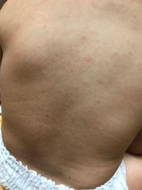 ない 発疹 熱 下がら 突発 性